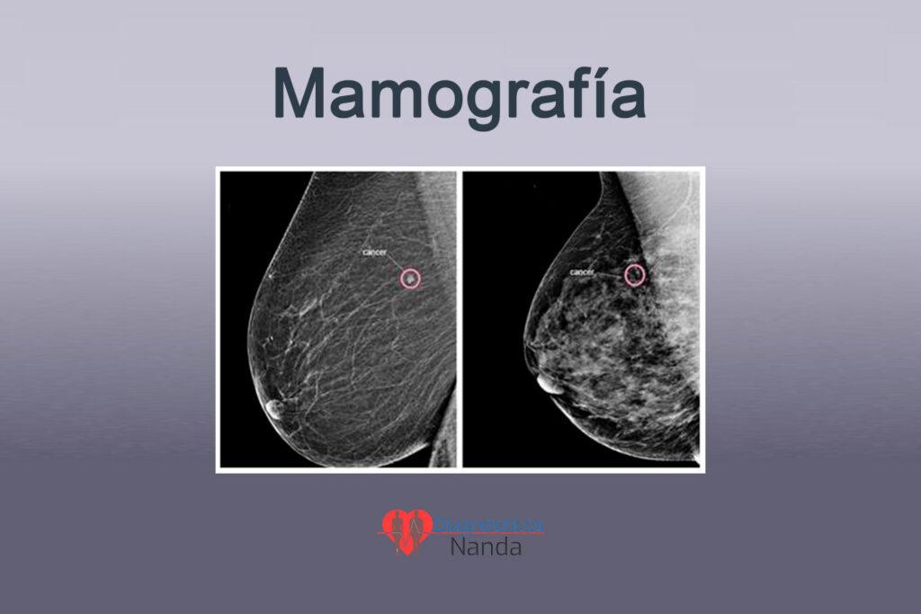 cáncer encontrado en una mamografía